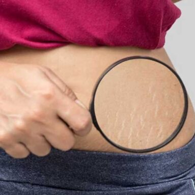 Scar and Stretch Marks Reduction
