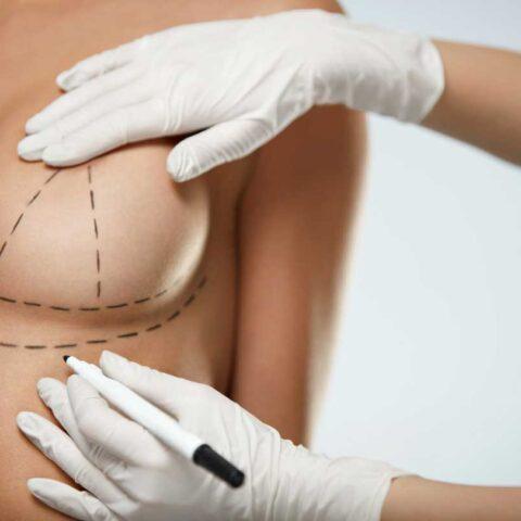 Breast Augmentation lift
